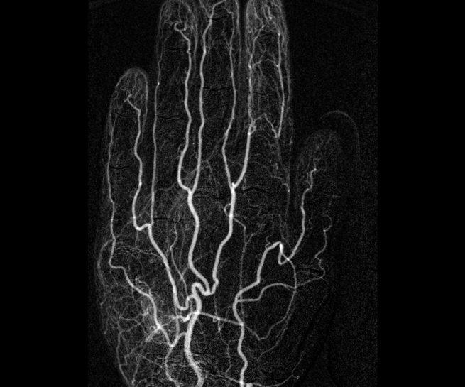 Angio_hand_Radiologische_Praxis_Erkelenz