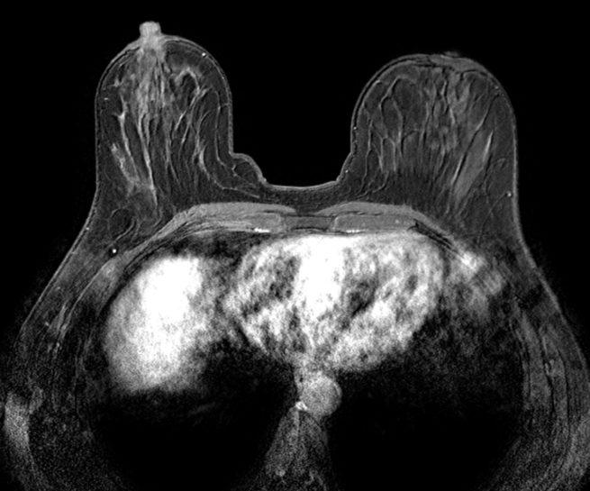 brust_MRT_Radiologische_Praxis_Erkelenz